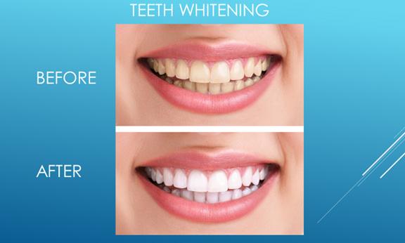 Bright Dental Surgery